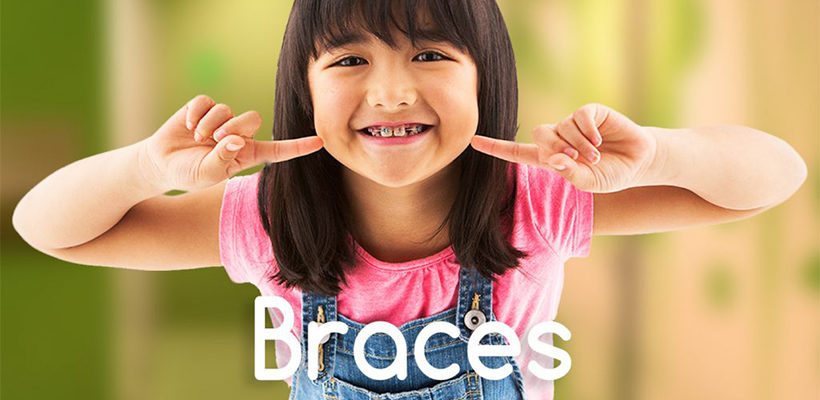 Reasons Why Braces are Important Part Of Child Dental Care?