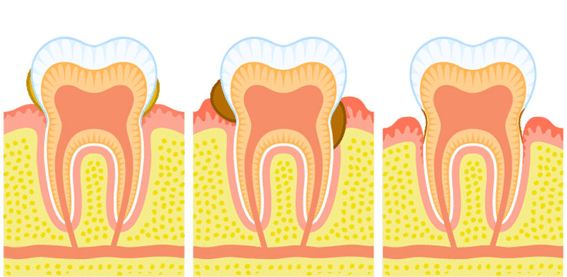 Why should Gingivitis be treated ASAP?