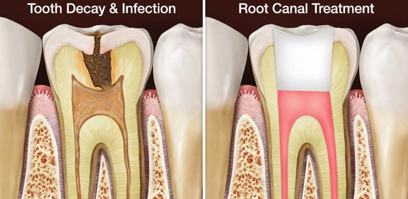 Root Canal Treatment: Things you Should Know Before Going for One
