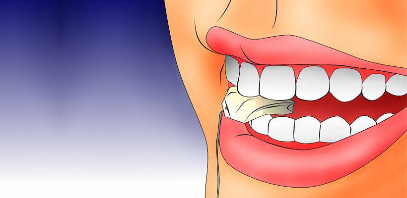 What are the various factors that cause swollen gums?