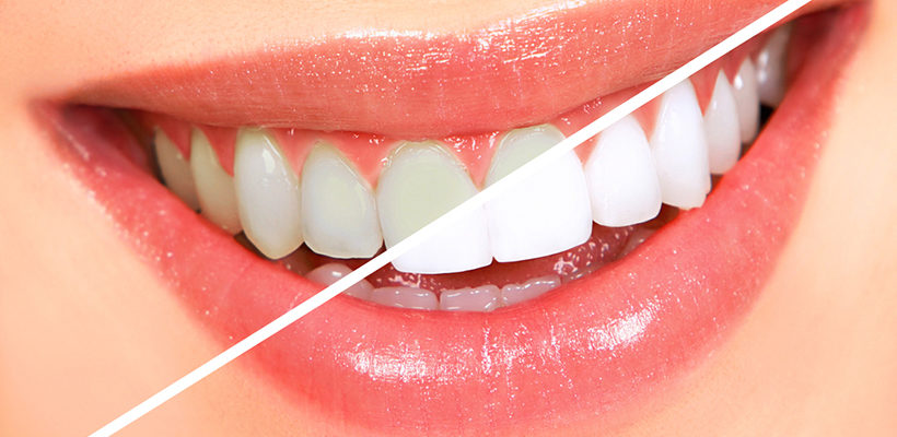 4 Teeth Whitening Myths Debunked: A Rendezvous with the Facts